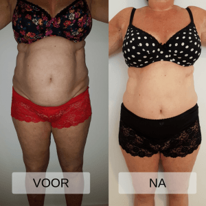 Voor en na foto bodysculpting Total Body Salon